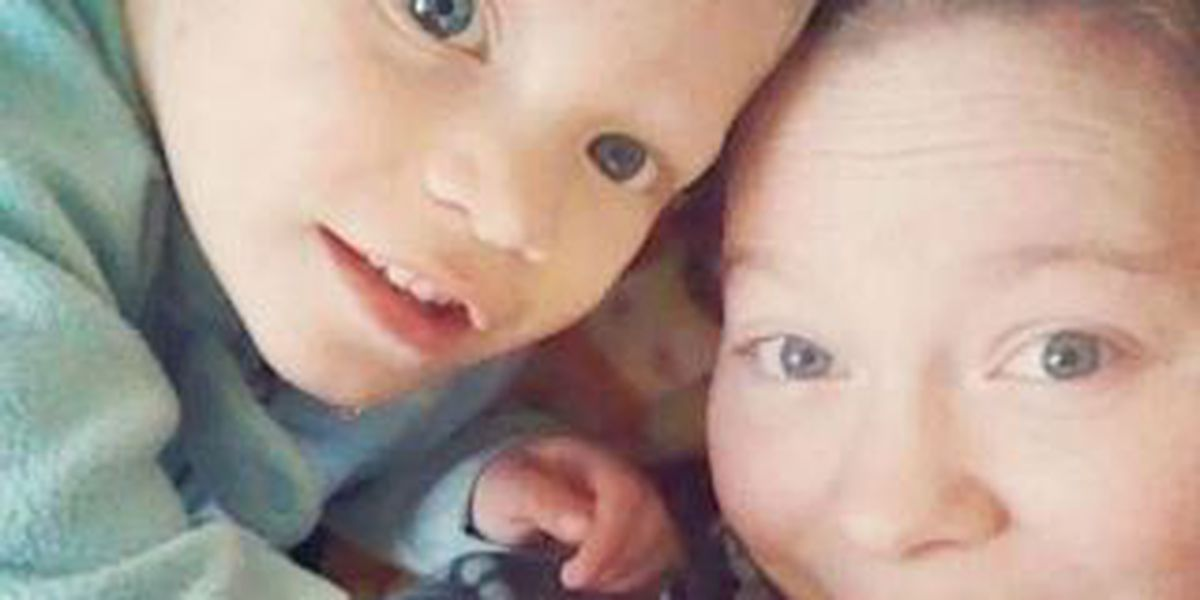 Community supports 2-year-old badly beaten and critically injured
