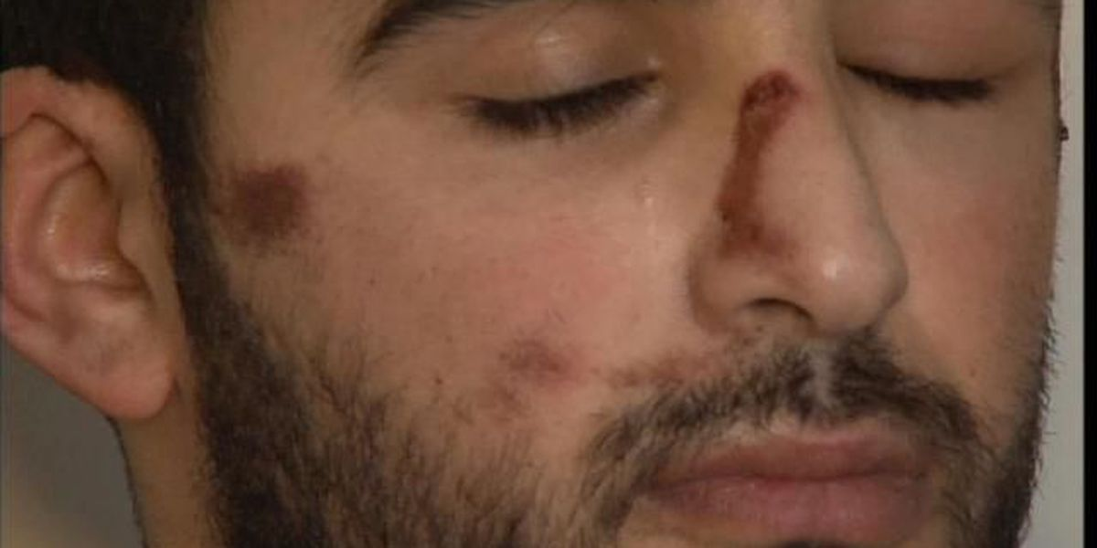 Valet hit and run victim speaks out