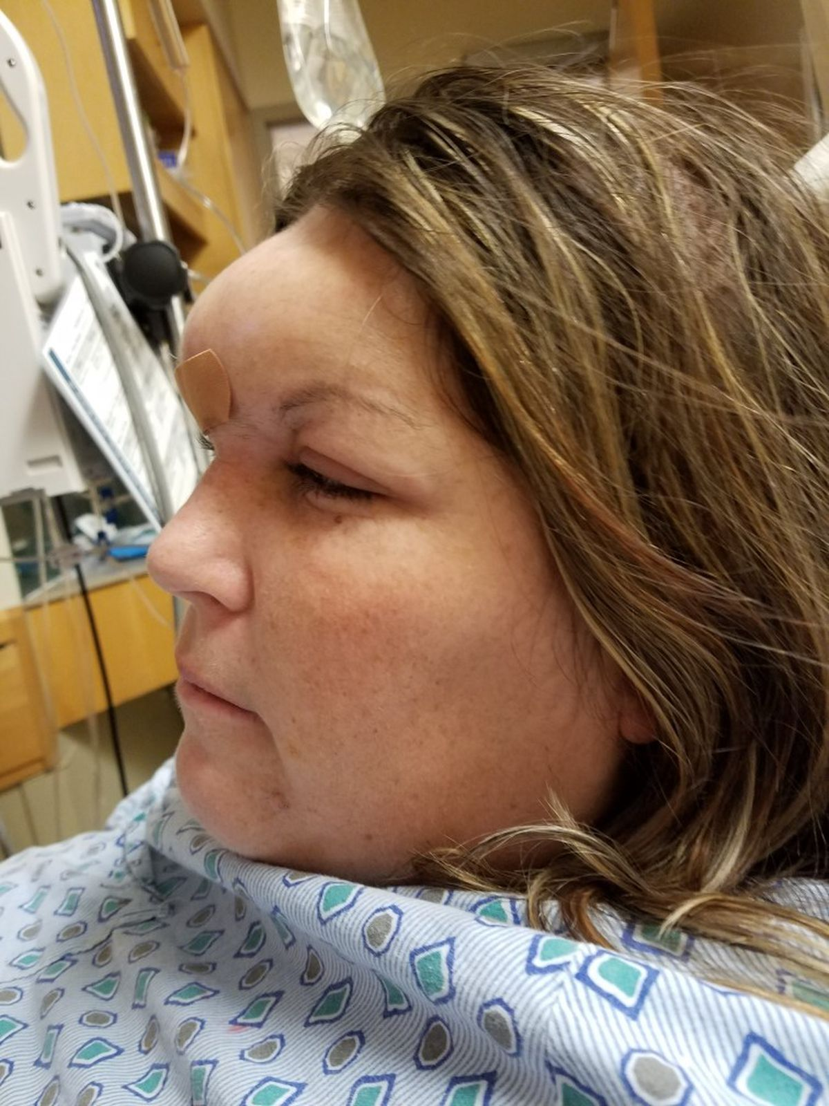 Cleveland Gas Prices >> Ohio woman battling rare form of cancer: Potts Puffy Tumor