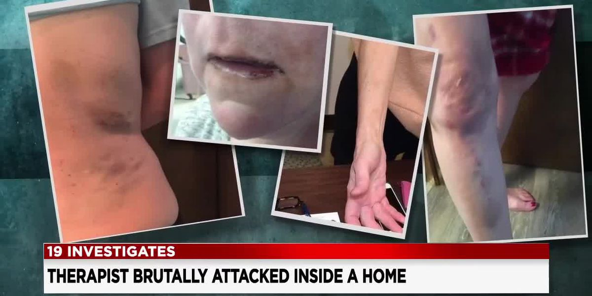 19 Investigates home health care industry regulations after respiratory therapist is brutally attacked by a patient