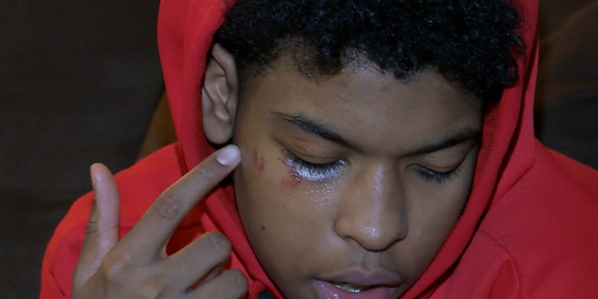 Akron teen attacked and robbed for his tennis shoes, suspects still at large