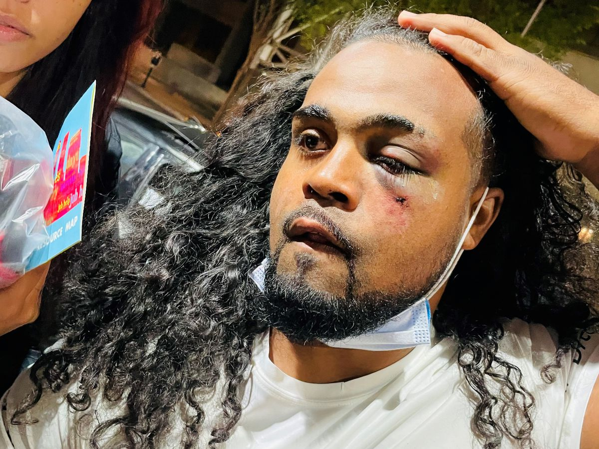 Protester addresses getting punched by Louisville police officer during arrest