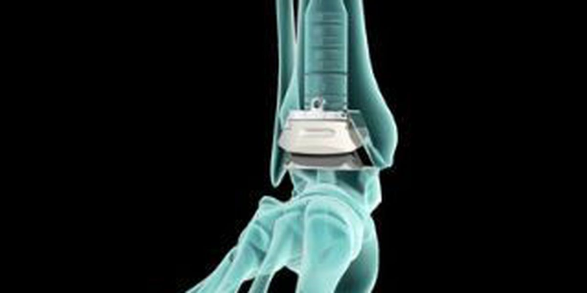 More patients are considering the INBONE Total Ankle System