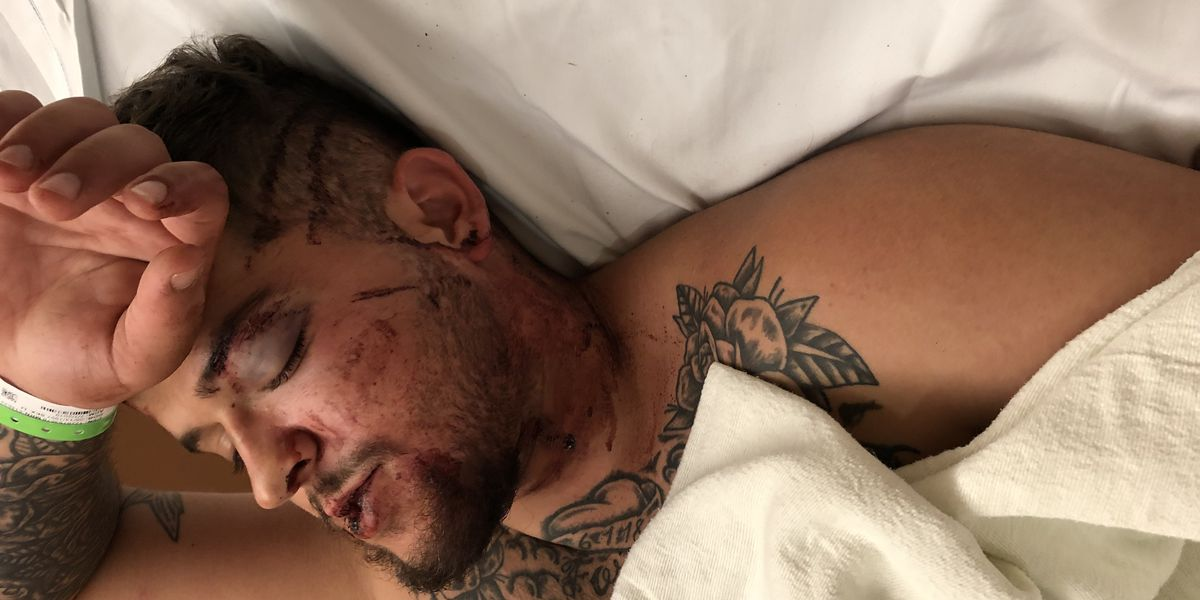 Cleveland father says he was robbed at gunpoint downtown, beaten and left to die