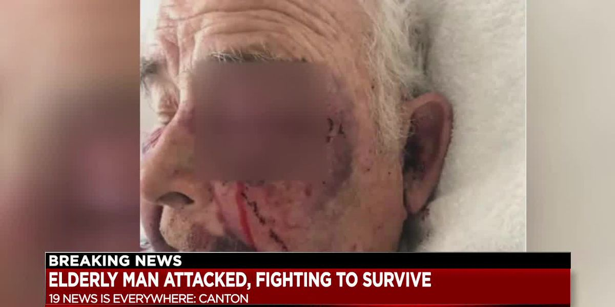 Elderly Canton man beaten by driver after car accident
