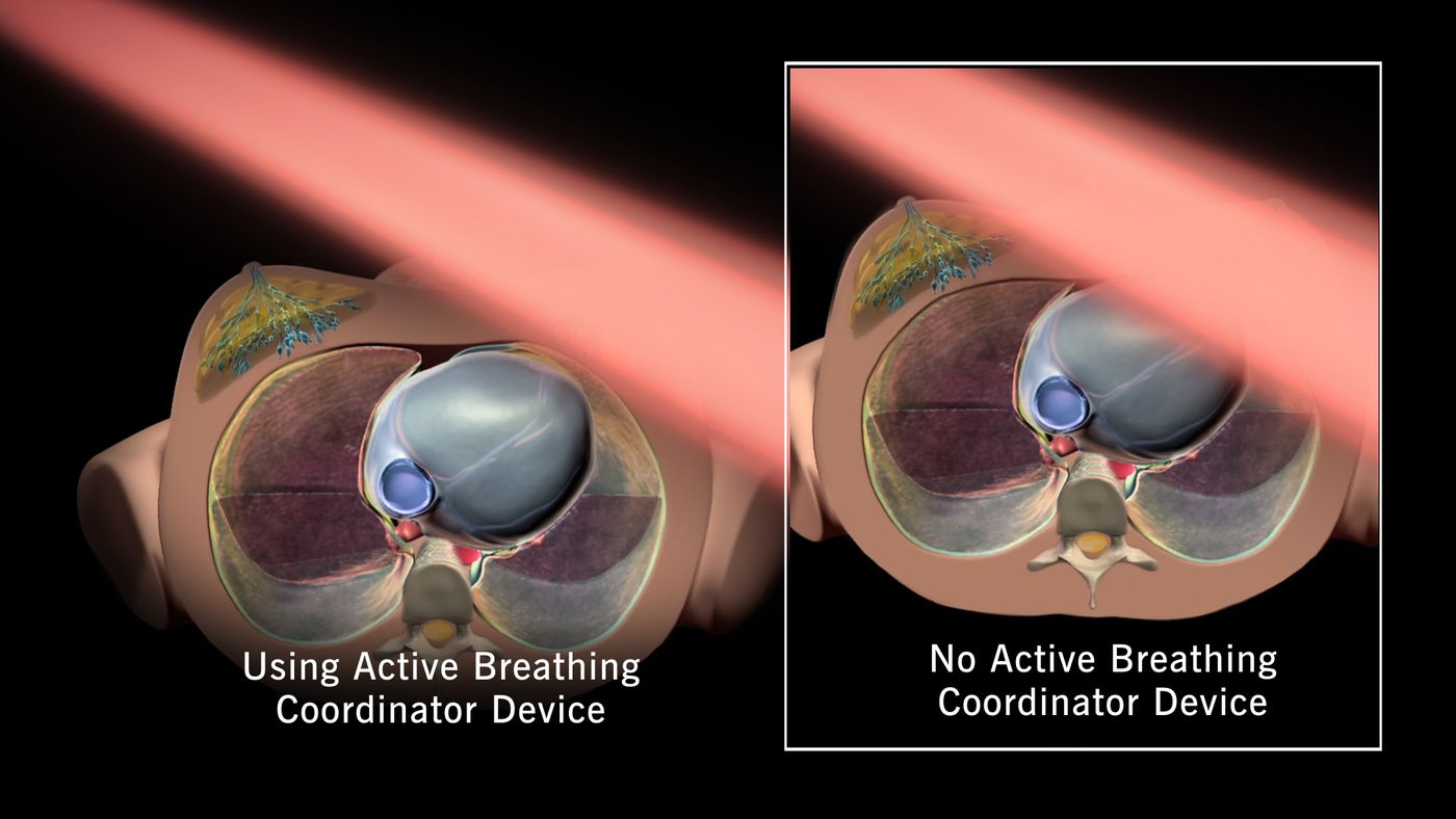 Breast cancer patients using their breath to save their hearts