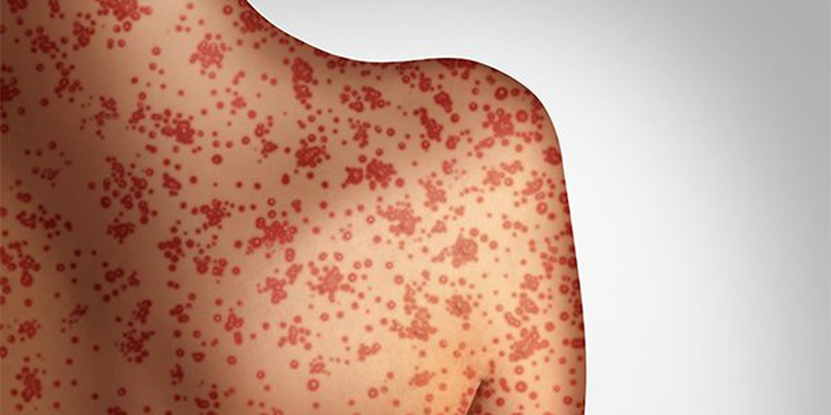 Ohio officials investigating first possible case of measles in state