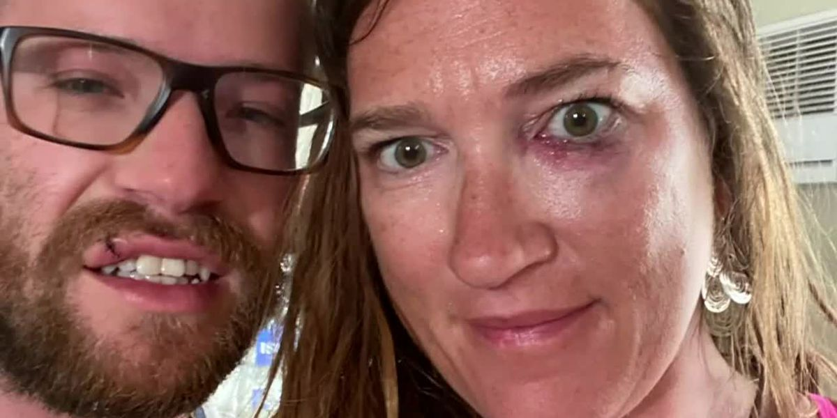 Couple beaten while visiting Miami Beach, arrest made