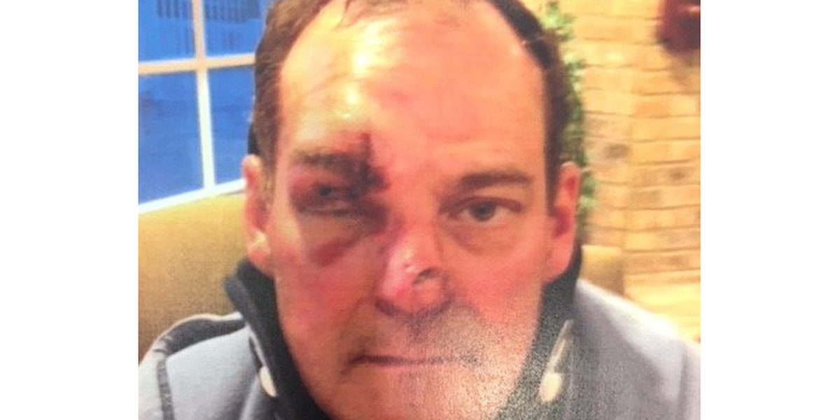 West Park hit-and-run victim discovered real battle was against his own insurance company
